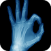 Download Best X-Ray FREE 5.0 APK