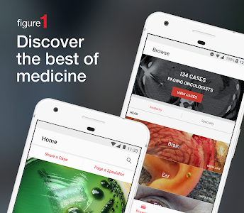 Download Figure 1 - Medical Images 5.40.0 APK