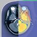 Download POCKET ATLAS OF CT HEAD 2.0 APK